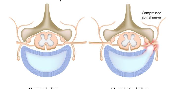 5 Common Symptoms of Lumbar Disc Herniations