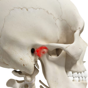 Treatment for TMJ Pain