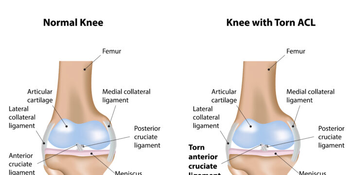Risks for Developing ACL Injuries